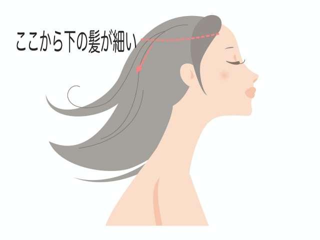 細い髪の部分を説明する図